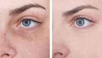 альгинатная маска до и после